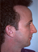 Hair Line Lowering - Patient 6 - Lateral Left - Before