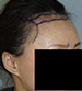 Hair Line Lowering - Patient 1 - Obl Right - Before