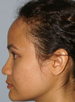 Hair Line Lowering - Patient 9 - Lateral Left - Before