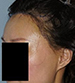 Hair Line Lowering - Patient 1 - Lateral Left - After