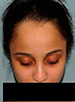 Hair Line Lowering - Patient 1 - Up - Before