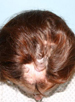 Hair Reconstructive Scalp Patient 2 Before 3