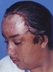 Hair Reconstructive Scalp Patient 5 After 2