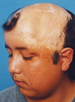 Hair Reconstructive Scalp Patient 5 Before 2