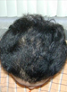 Hair Reconstructive Scalp Patient 5 After 4