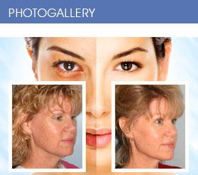 Facial Plastic Surgery in Oakland