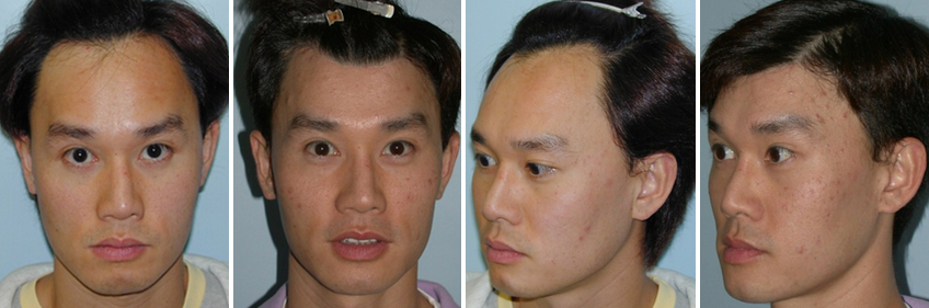Hairline Lowering Procedure on a Male Patient
