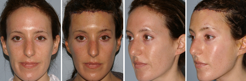 Hairline Lowering Results One Day After Procedure