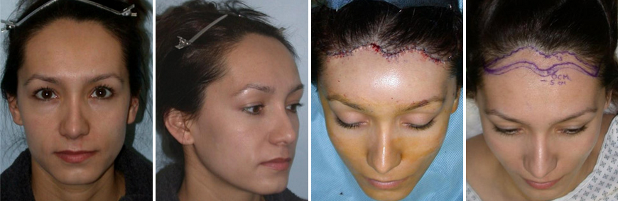 Patient with a high (7.5 cm) hairline