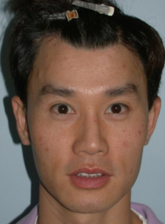 Asian Forehead Reduction - Patient 6 - Front - After