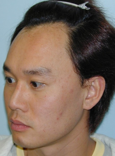 Low hairline