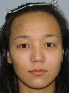 Asian Forehead Reduction - Patient 1 - Front - Before