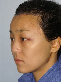 Asian Forehead Reduction - Patient 1 - Obl Left - After