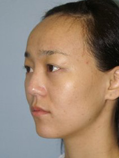 Asian Forehead Reduction - Patient 1 - Obl Left - Before