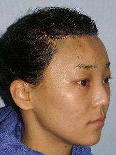 Asian Forehead Reduction - Patient 1 - Obl Right - After