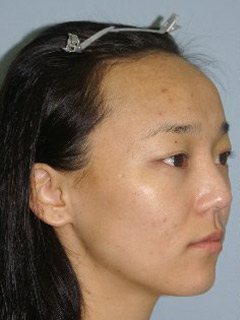 Asian Forehead Reduction - Patient 1 - Obl Right - Before