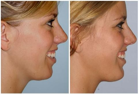 Chin Augmentation in Oakland