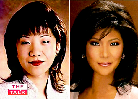 Julie Chen, Eyelid Surgery in Oakland, CA