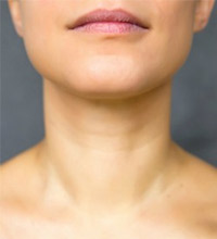 Five Common Myths About Chin Implants