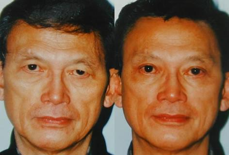 Asian Eyelid before and after photos in San Francisco, CA, Patient 12891