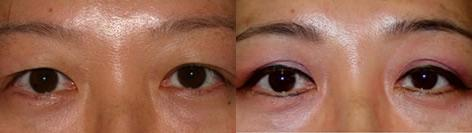 Asian Eyelid before and after photos in San Francisco, CA, Patient 12894