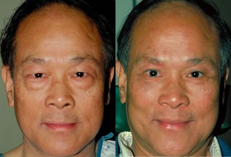 Asian Eyelid before and after photos in San Francisco, CA, Patient 12897