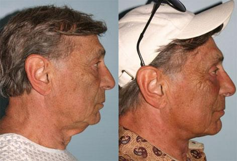 Direct Excision Of Neck Skin before and after photos in San Francisco, CA, Patient 13193