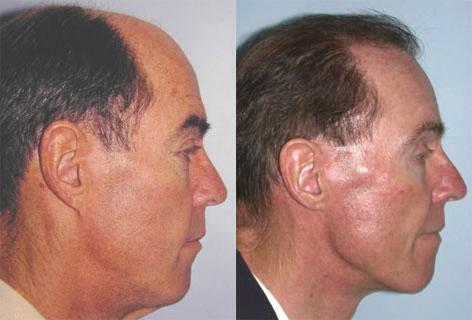 Direct Excision Of Neck Skin before and after photos in San Francisco, CA, Patient 13200