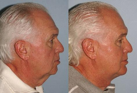 Direct Excision Of Neck Skin before and after photos in San Francisco, CA, Patient 13201