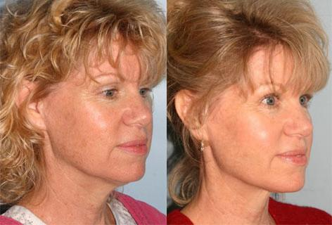 Neck Lift before and after photos in San Francisco, CA, Patient 13287
