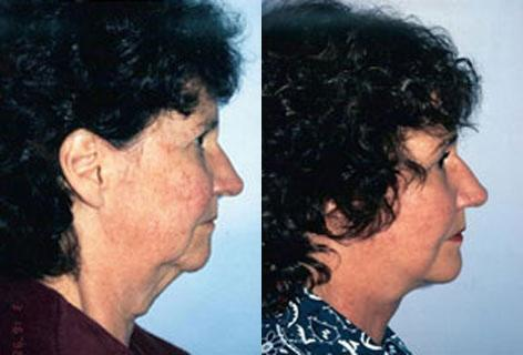 Neck Lift before and after photos in San Francisco, CA, Patient 13299