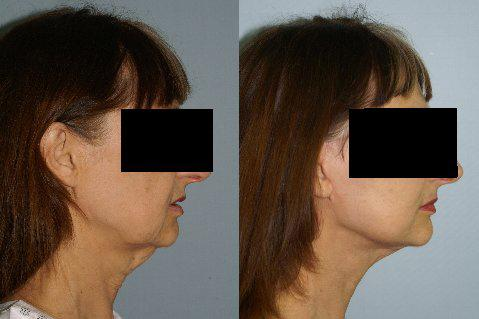 Neck Lift before and after photos in San Francisco, CA, Patient 13304