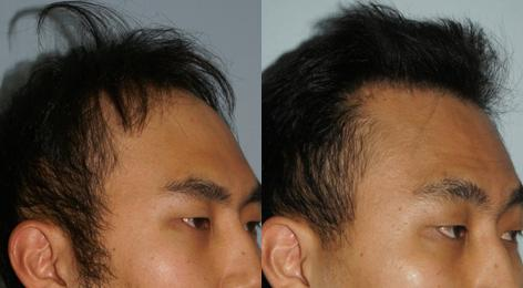 Follicular Unit Hair Grafting before and after photos in San Francisco, CA, Patient 13539