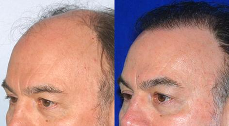 Follicular Unit Hair Grafting before and after photos in San Francisco, CA, Patient 13548