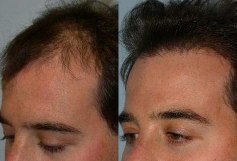 Follicular Unit Hair Grafting before and after photos in San Francisco, CA, Patient 13549
