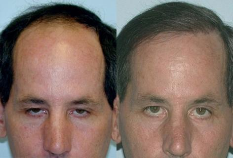 Follicular Unit Hair Grafting before and after photos in San Francisco, CA, Patient 13552