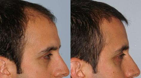 Follicular Unit Hair Grafting before and after photos in San Francisco, CA, Patient 13553