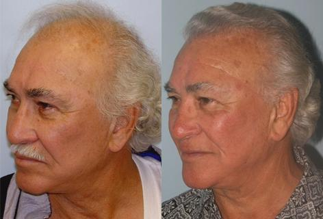 Follicular Unit Hair Grafting before and after photos in San Francisco, CA, Patient 13554