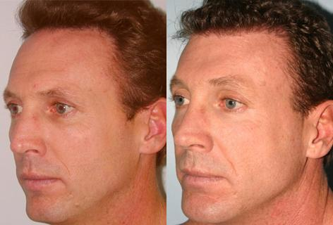 Follicular Unit Hair Grafting before and after photos in San Francisco, CA, Patient 13559