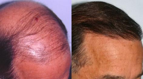 Follicular Unit Hair Grafting before and after photos in San Francisco, CA, Patient 13562