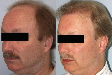Follicular Unit Hair Grafting before and after photos in San Francisco, CA, Patient 13565