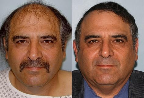 Follicular Unit Hair Grafting before and after photos in San Francisco, CA, Patient 13572