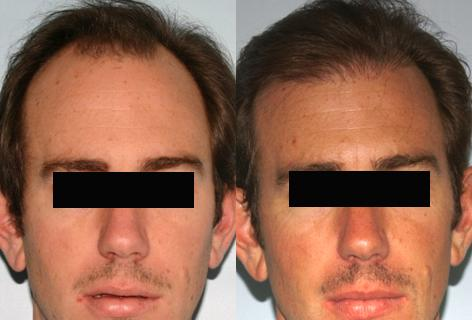 Follicular Unit Hair Grafting before and after photos in San Francisco, CA, Patient 13580