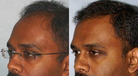 Follicular Unit Hair Grafting before and after photos in San Francisco, CA, Patient 13589
