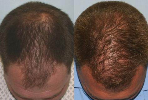 Follicular Unit Hair Grafting before and after photos in San Francisco, CA, Patient 13594