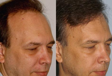 Follicular Unit Hair Grafting before and after photos in San Francisco, CA, Patient 13599