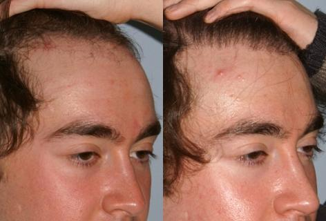 Follicular Unit Hair Grafting before and after photos in San Francisco, CA, Patient 13626