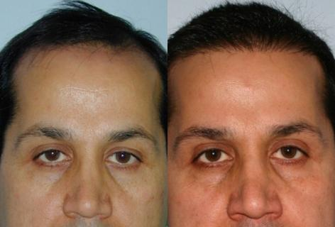 Follicular Unit Hair Grafting before and after photos in San Francisco, CA, Patient 13637