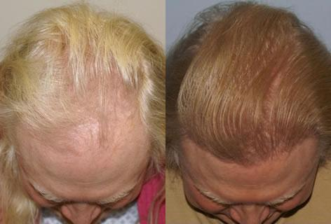 Follicular Unit Hair Grafting before and after photos in San Francisco, CA, Patient 13652