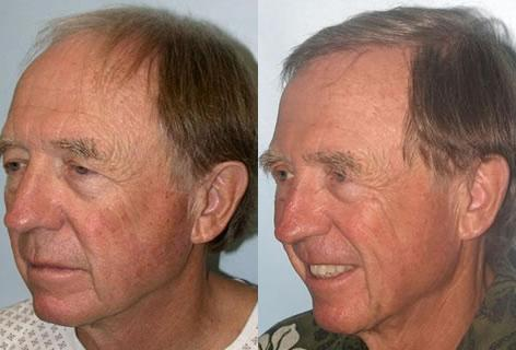 Follicular Unit Hair Grafting before and after photos in San Francisco, CA, Patient 13657